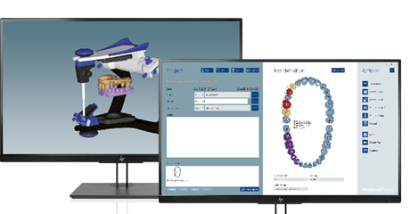 [] Two screens showing the dental CAD software Ceramill Mind